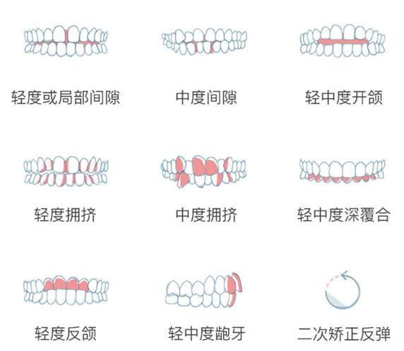 数字化口腔正畸+自建专科诊所,「微笑库」从中轻度矫治切入市场