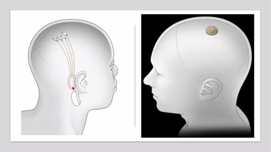 马斯克脑机接口技术(马斯克脑机接口发布会)