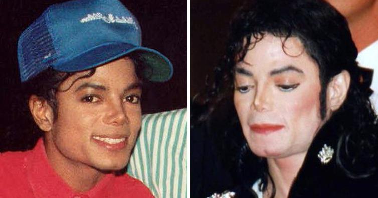 迈克尔杰克逊是怎么变白的(揭秘迈克尔.杰克逊生前皮肤颜色由来)